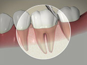South Calgary Periodontal Group - Regular Dental Visits