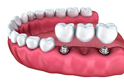 dental-implant-bridge