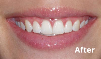 esthetic-crown-lengthening-after