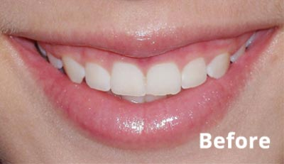 esthetic-crown-lengthening-before