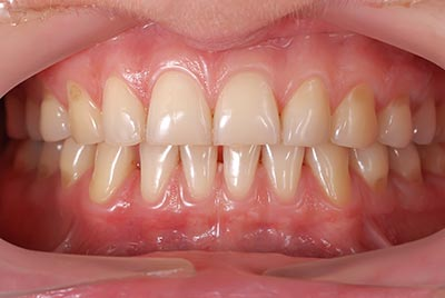healthy-gums