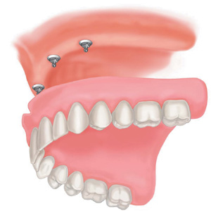 implant-full-upper-denture
