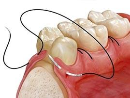 Osseous Dental Surgery