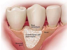 Regenerative Dental Surgery